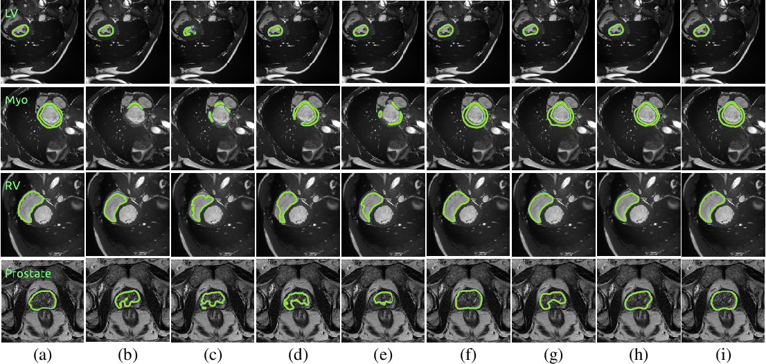 Figure 3 for Context-aware virtual adversarial training for anatomically-plausible segmentation