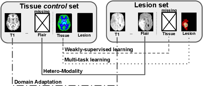 Figure 1 for Learning joint segmentation of tissues and brain lesions from task-specific hetero-modal domain-shifted datasets