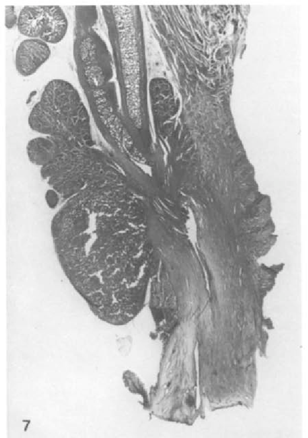 Figure 7 From The Zonal Anatomy Of The Prostate In Man And In The