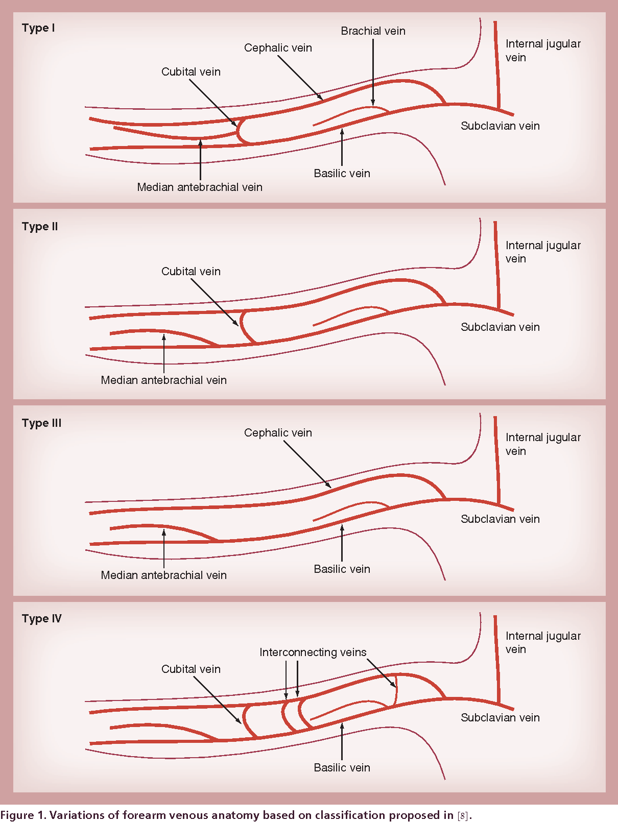Right heart catheterization and other venous cardiovascular ...