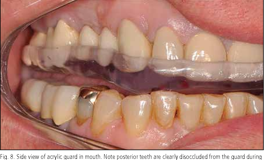 The Occlusal Guard A Simplified Technique For Fabrication And