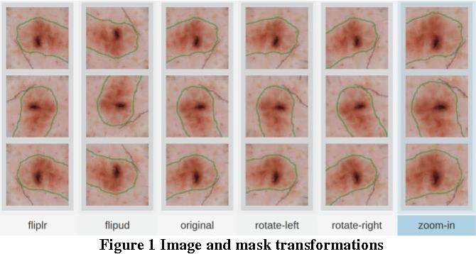 Figure 1 for ISIC 2017 - Skin Lesion Analysis Towards Melanoma Detection