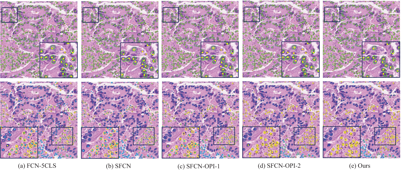 Figure 4 for SFCN-OPI: Detection and Fine-grained Classification of Nuclei Using Sibling FCN with Objectness Prior Interaction