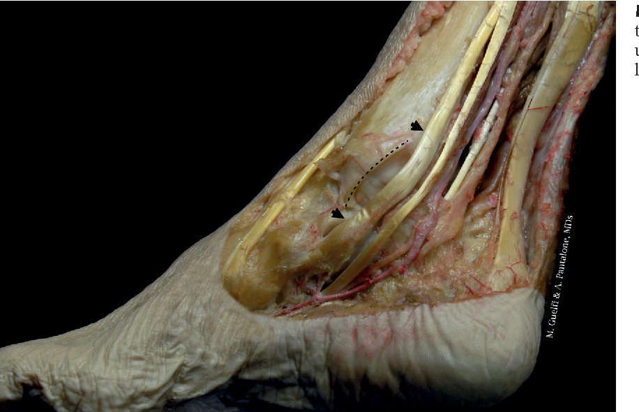Anatomy Pathophysiology And Classification Of Posterior Tibial