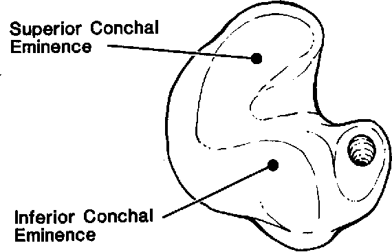 Figure 3 from Anatomy of an earmold: a formal terminology ...