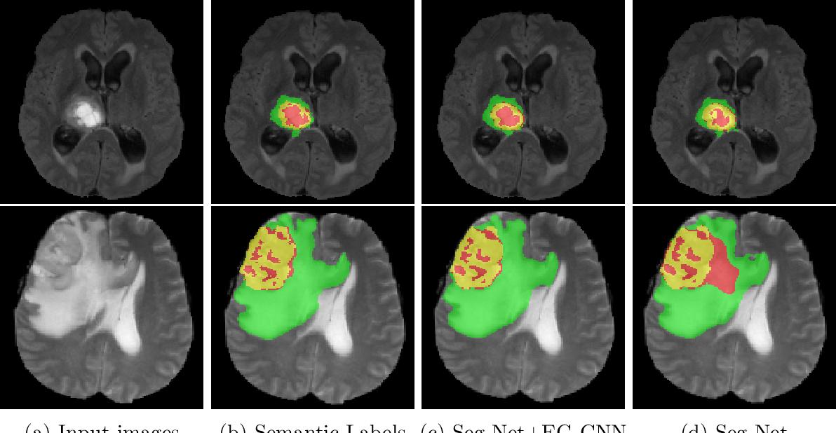 Figure 3 for Edge-Gated CNNs for Volumetric Semantic Segmentation of Medical Images
