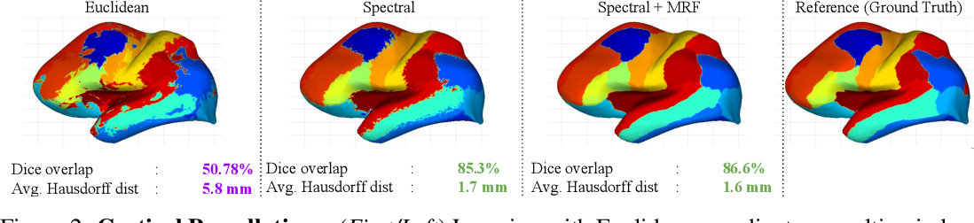 Figure 2 for Graph Convolutions on Spectral Embeddings: Learning of Cortical Surface Data