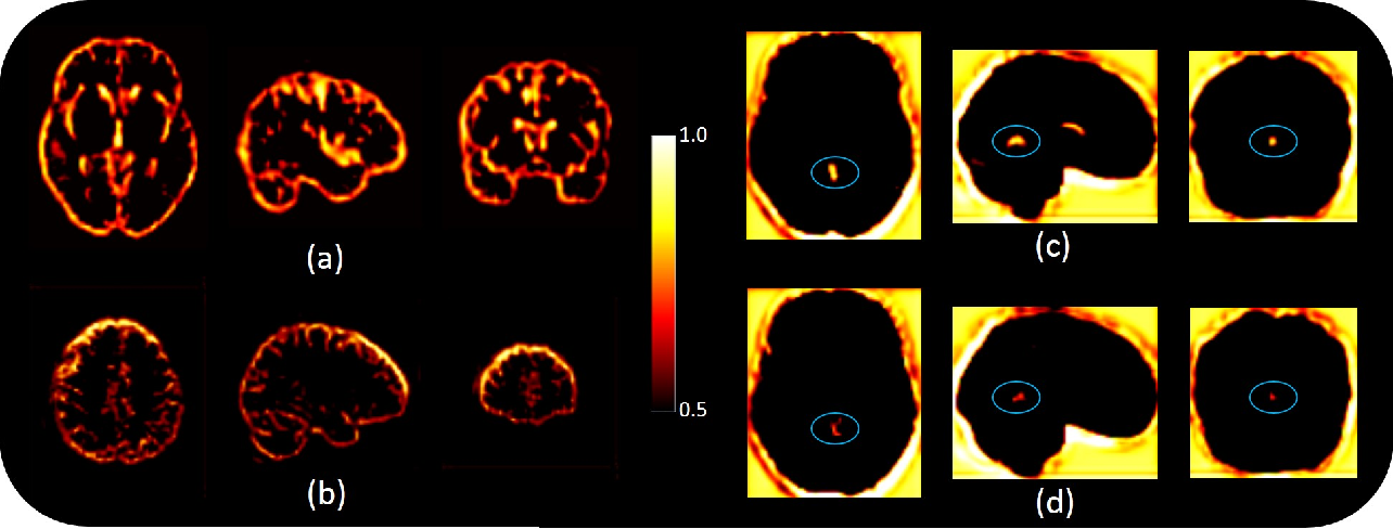 Figure 2 for MRI to PET Cross-Modality Translation using Globally and Locally Aware GAN (GLA-GAN) for Multi-Modal Diagnosis of Alzheimer's Disease