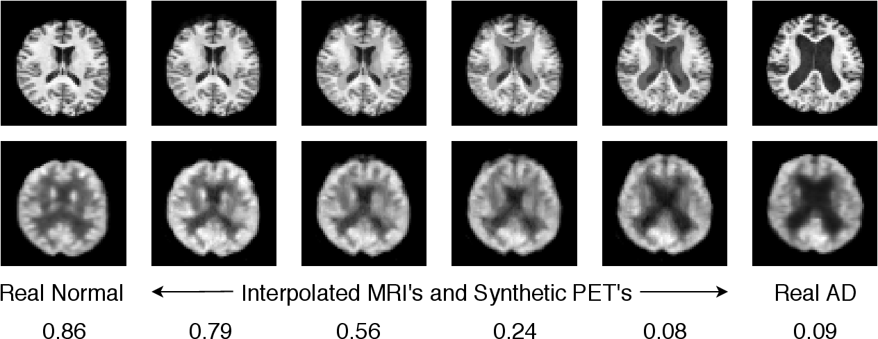 Figure 3 for MRI to PET Cross-Modality Translation using Globally and Locally Aware GAN (GLA-GAN) for Multi-Modal Diagnosis of Alzheimer's Disease