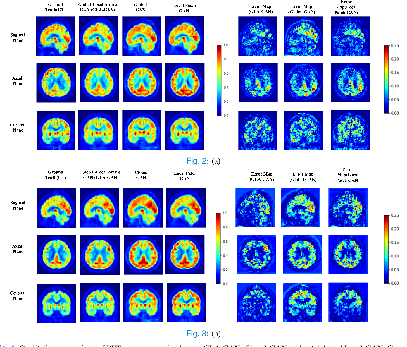Figure 4 for MRI to PET Cross-Modality Translation using Globally and Locally Aware GAN (GLA-GAN) for Multi-Modal Diagnosis of Alzheimer's Disease