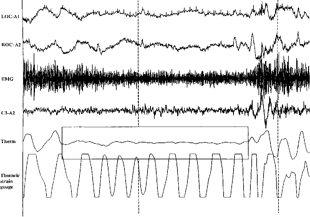 Figure 1. Examples of prearousal slow waves following an apnea (marked by a box) rejected as artifacts before computation of SWA. EMG 5 electromyogram; ROC 5 right outer canthus; LOC 5 left outer canthus; Therm 5 thermistor.