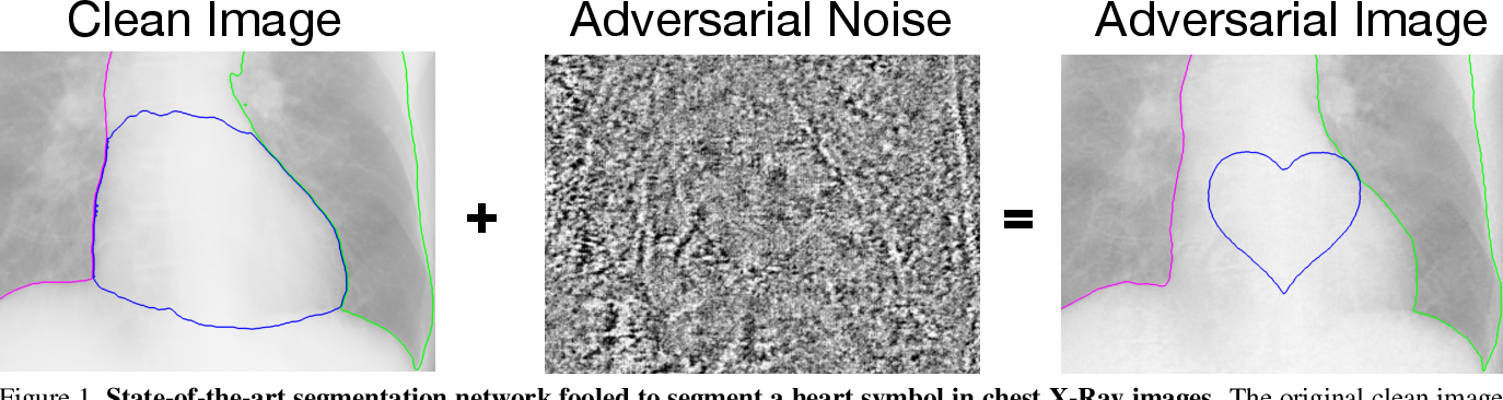 Figure 1 for Adversarial Heart Attack: Neural Networks Fooled to Segment Heart Symbols in Chest X-Ray Images