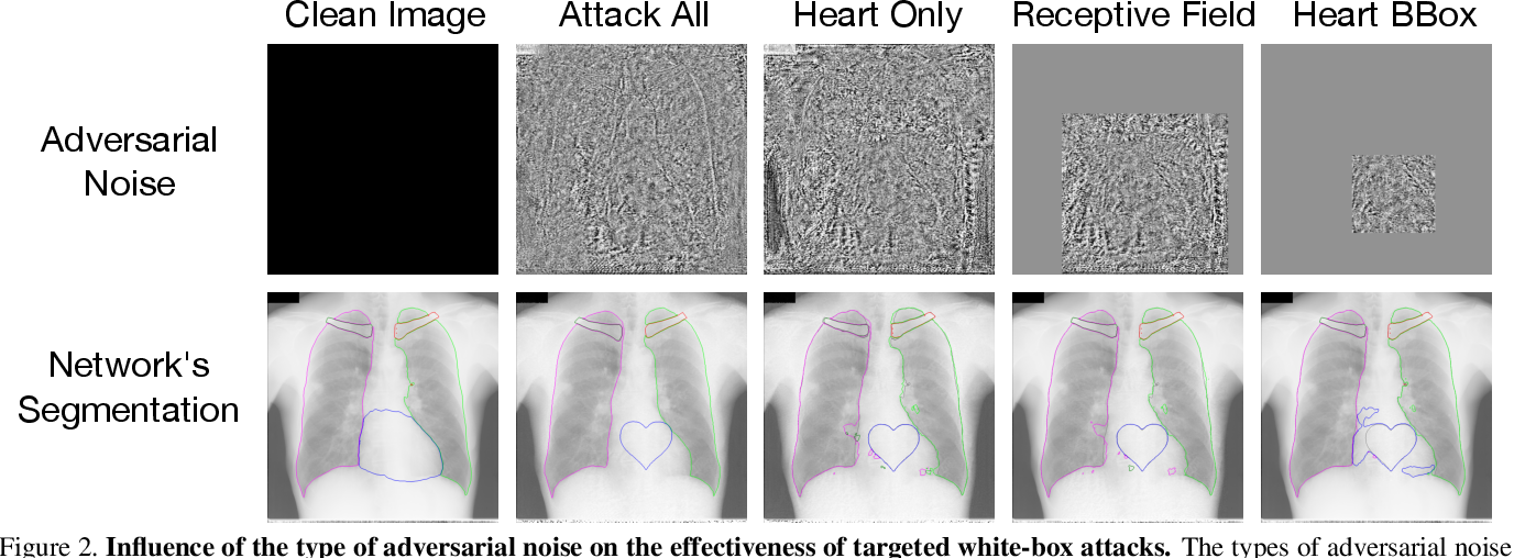 Figure 2 for Adversarial Heart Attack: Neural Networks Fooled to Segment Heart Symbols in Chest X-Ray Images