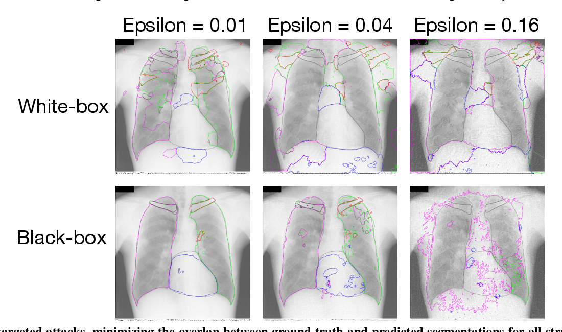 Figure 4 for Adversarial Heart Attack: Neural Networks Fooled to Segment Heart Symbols in Chest X-Ray Images