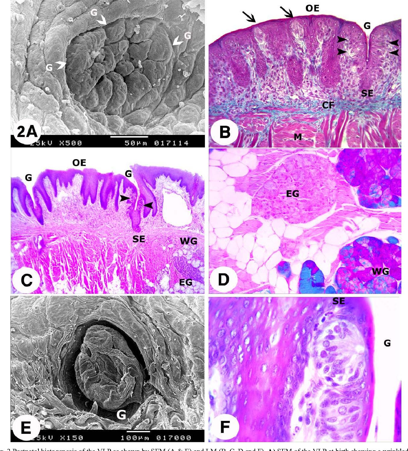 Figure 2 From Histogenesis Of Rabbit Vallate Papillae Semantic Scholar