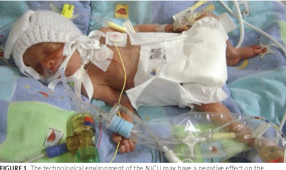 The Role Of The Neonatal Nurse In Promoting Parental Attachment In