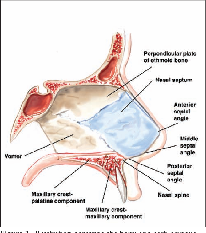 Figure 2 From Surgical Treatment Of Nasal Obstruction In Rhinoplasty