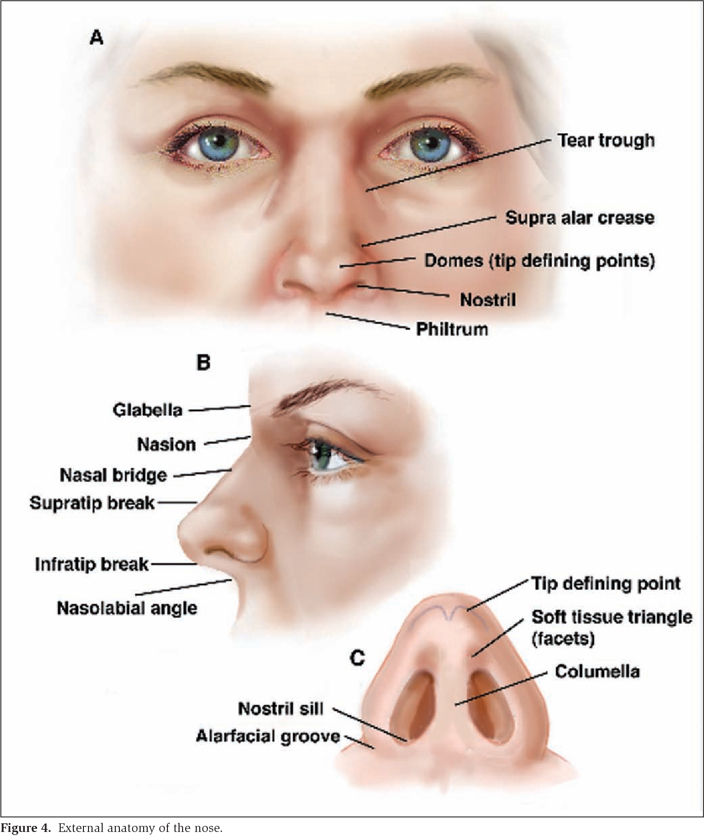 Figure 4 From Surgical Treatment Of Nasal Obstruction In Rhinoplasty