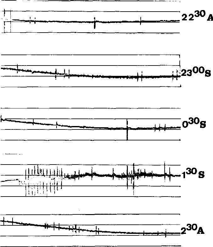Fig. 3. Continuous muscle fibre activity during sleep. Recordings were made from left m. tibilalis anterior with surface electrodes. Numbers indicate time (h); A = patient is awake; S = patient is asleep. No medication was used to induce sleep