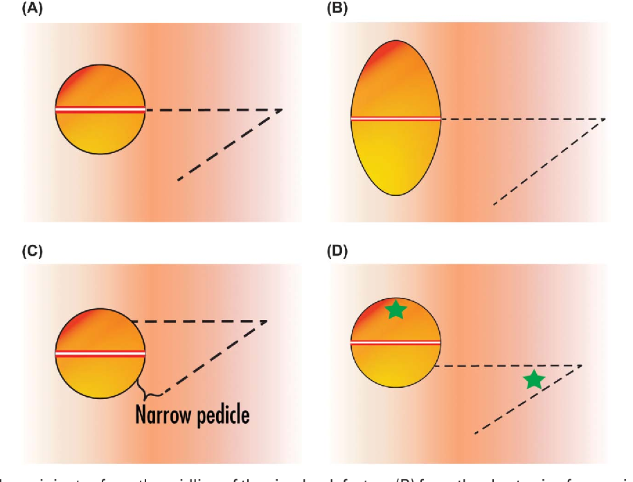 Figure 2. (A) The flap originates from the midline of the circular defect, or (B) from the short axis of an ovoid defect. (C) If the flap originates more distally, its tissue mechanics more closely resemble those of a rotation flap with a large backcut. (D) If the flap originates more proximally, a longer, more tenuously vascularized flap is required (to join the green stars).