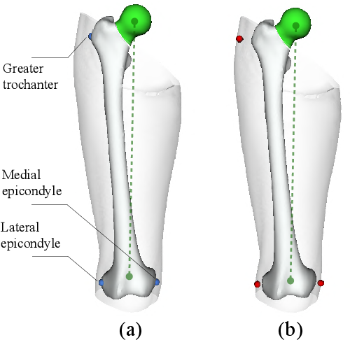 Figure 1 for Bone Surface Reconstruction and Clinical Features Estimation from Sparse Landmarks and Statistical Shape Models: A feasibility study on the femur