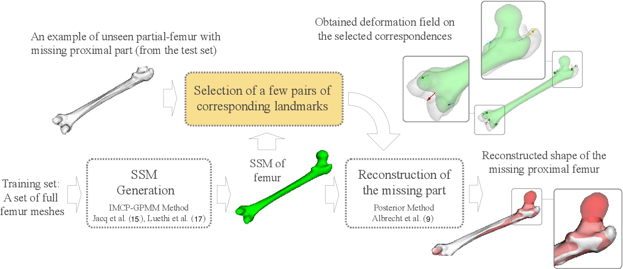 Figure 4 for Bone Surface Reconstruction and Clinical Features Estimation from Sparse Landmarks and Statistical Shape Models: A feasibility study on the femur