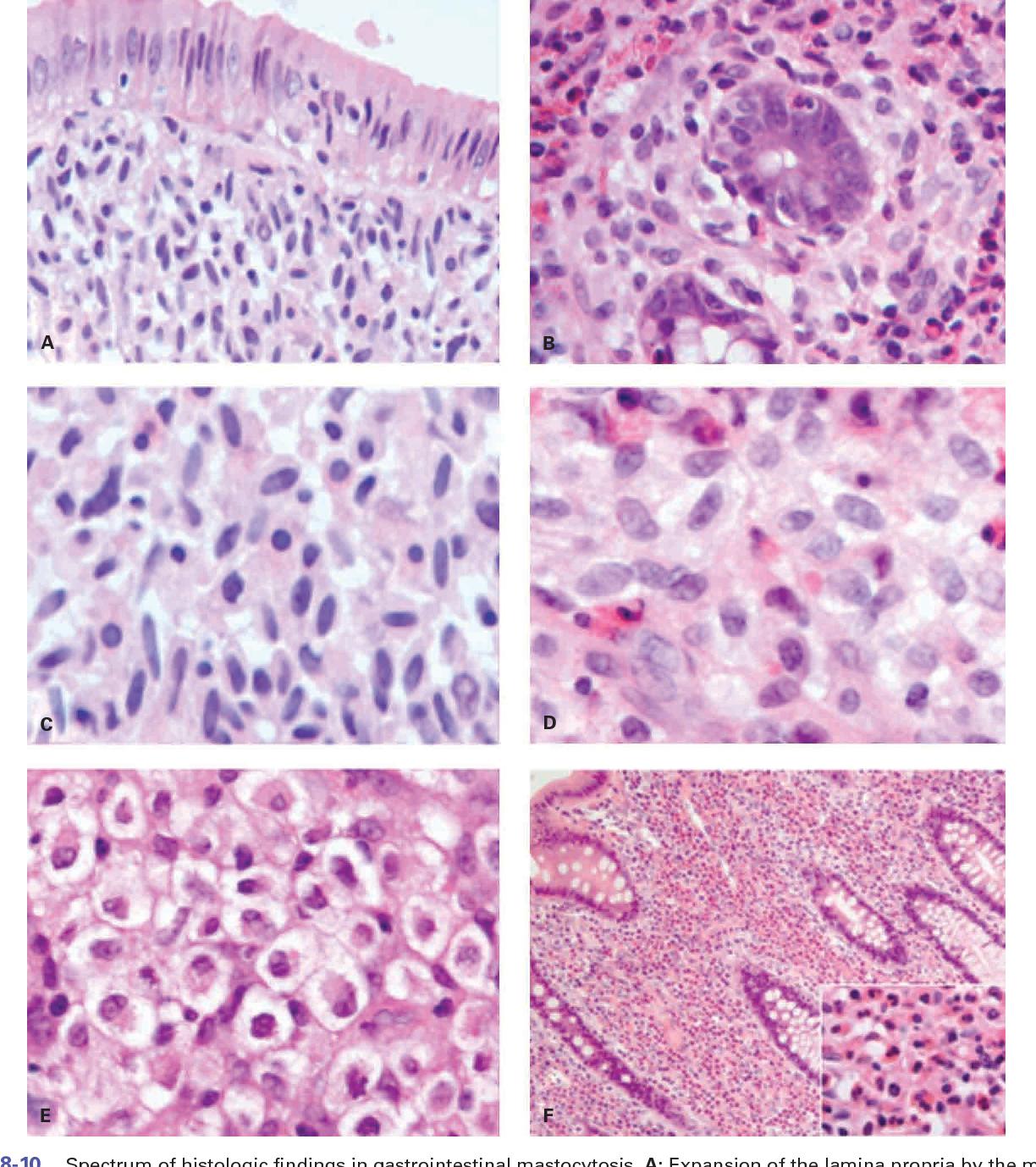 PDF] Renal Transplantation Role of the Pathologist and