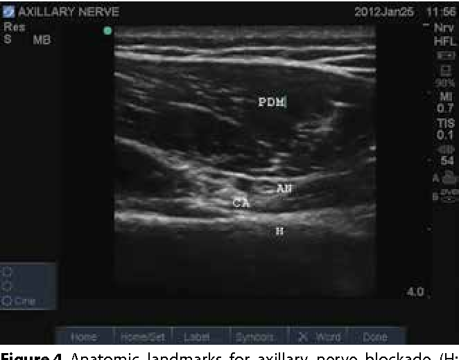 Figure 4 From Ultrasound Guided Chronic Pain Interventions Part I