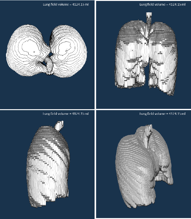 Figure 4 for CIDI-Lung-Seg: A Single-Click Annotation Tool for Automatic Delineation of Lungs from CT Scans