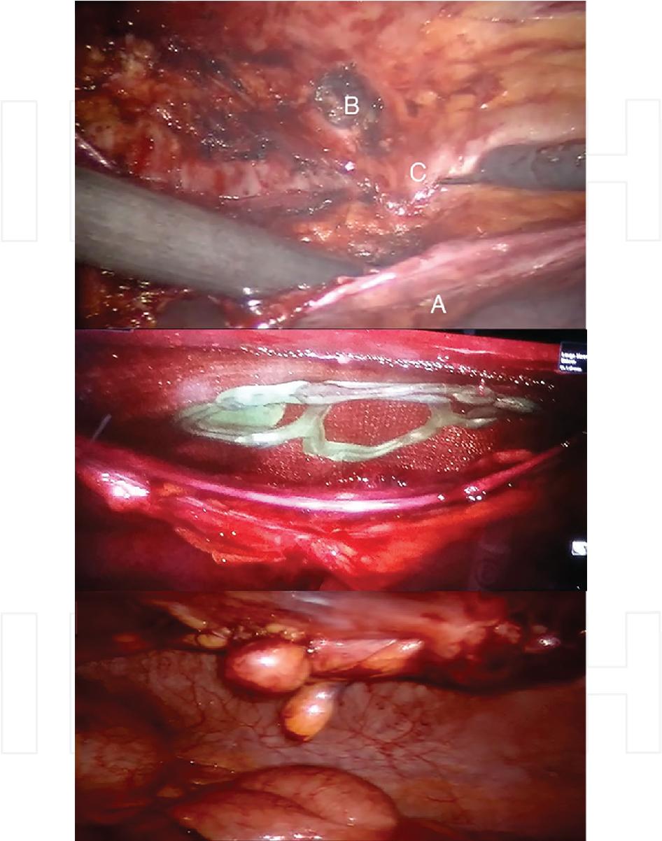 Chapter 7 Robotic Ventral Hernia Repair - Semantic Scholar