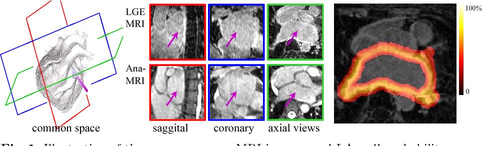 Figure 1 for Atrial fibrosis quantification based on maximum likelihood estimator of multivariate images