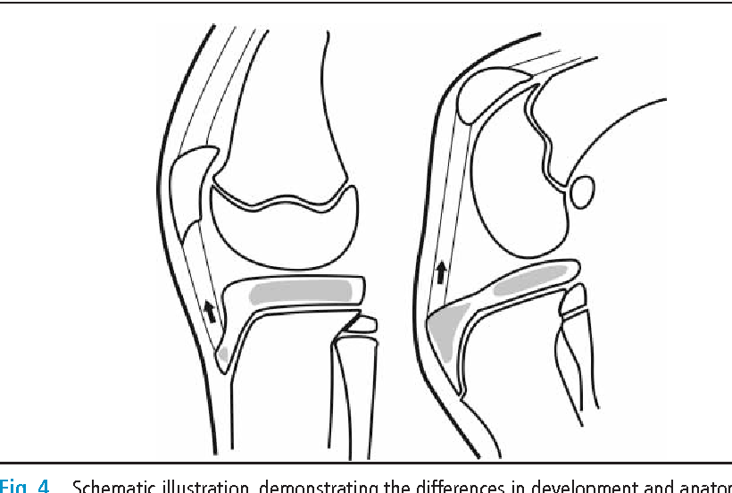 Figure 4 from Does Osgood-Schlatter disease exist in the dog
