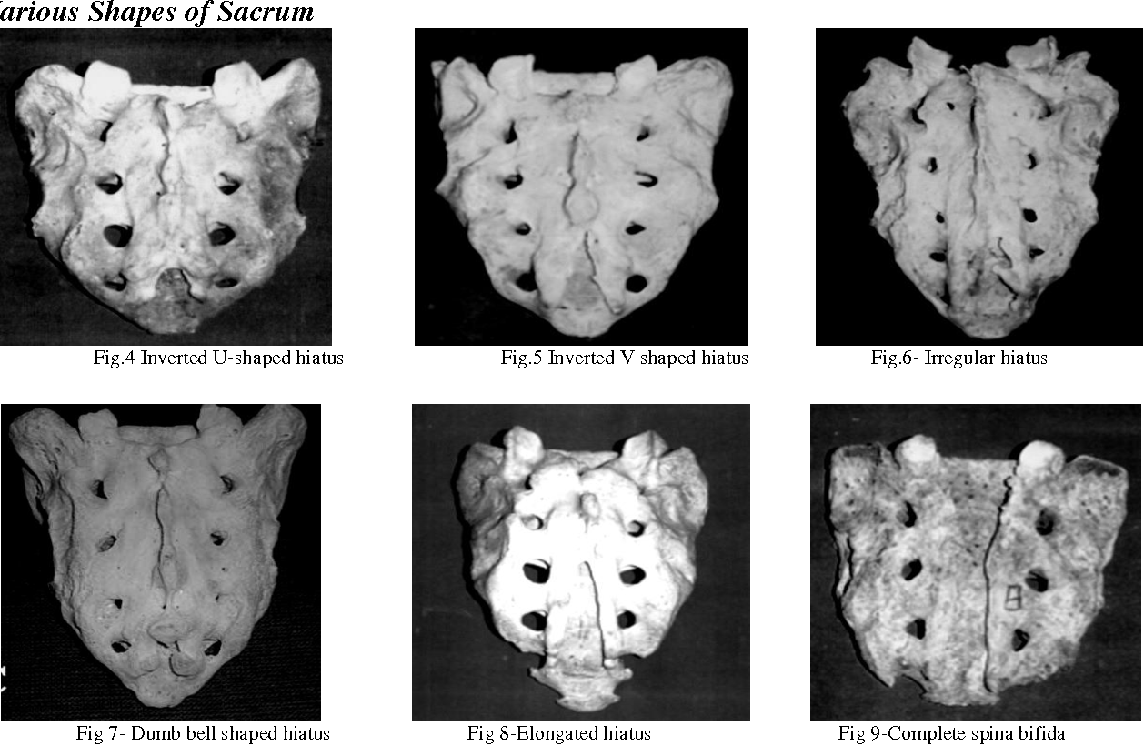 An Anatomical Study of Size and Position of Sacral Hiatus ; Its ...