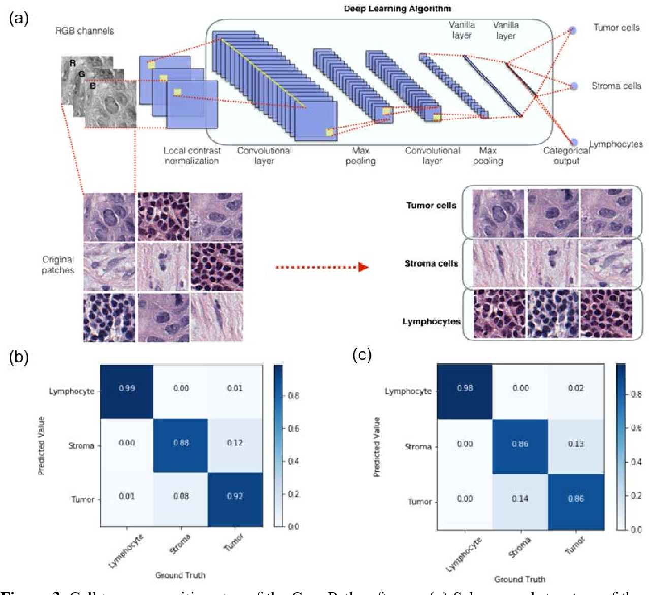 Figure 3 for ConvPath: A Software Tool for Lung Adenocarcinoma Digital Pathological Image Analysis Aided by Convolutional Neural Network