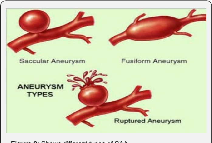 Spontaneous Rupture of Splenic Artery Aneurysm Reported cause of ...