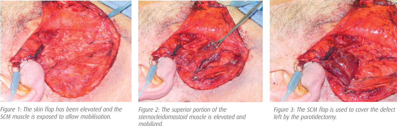Figure 1 From Sternocleidomastoid Muscle Flap Scm Reconstruction