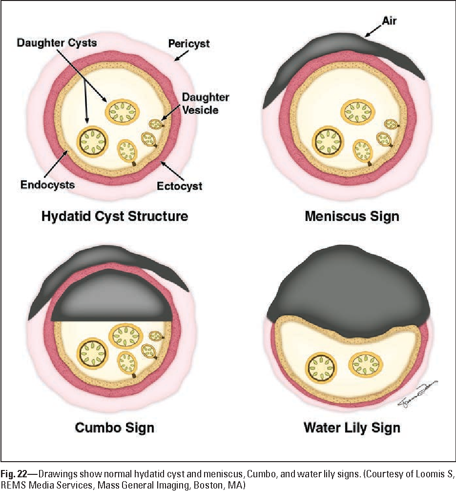 Figure 22 from Imaging pulmonary infection: classic signs and