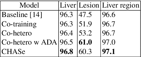 Figure 4 for Co-Heterogeneous and Adaptive Segmentation from Multi-Source and Multi-Phase CT Imaging Data: A Study on Pathological Liver and Lesion Segmentation