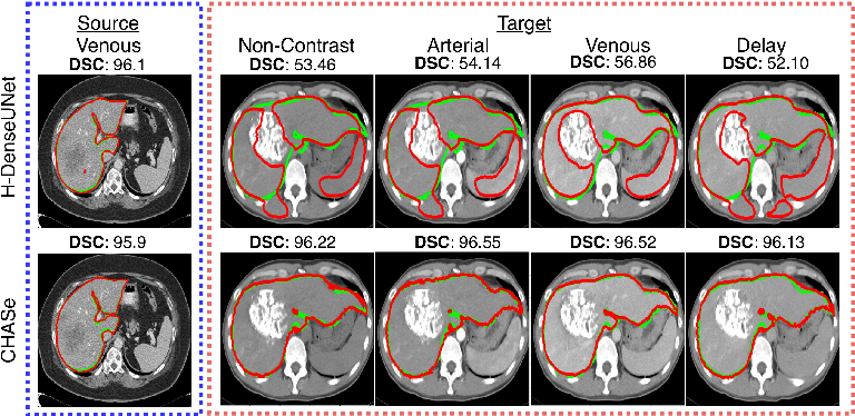 Figure 1 for Co-Heterogeneous and Adaptive Segmentation from Multi-Source and Multi-Phase CT Imaging Data: A Study on Pathological Liver and Lesion Segmentation
