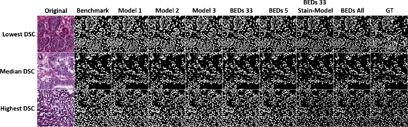 Figure 4 for BEDS: Bagging ensemble deep segmentation for nucleus segmentation with testing stage stain augmentation