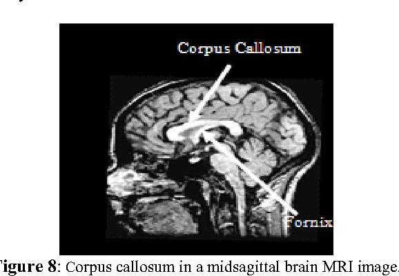 Figure 8: Corpus callosum in a midsagittal brain MRI image.