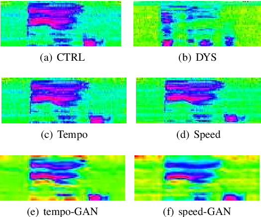 Figure 1 for Adversarial Data Augmentation for Disordered Speech Recognition