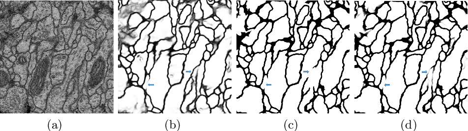 Figure 3 for The Importance of Skip Connections in Biomedical Image Segmentation