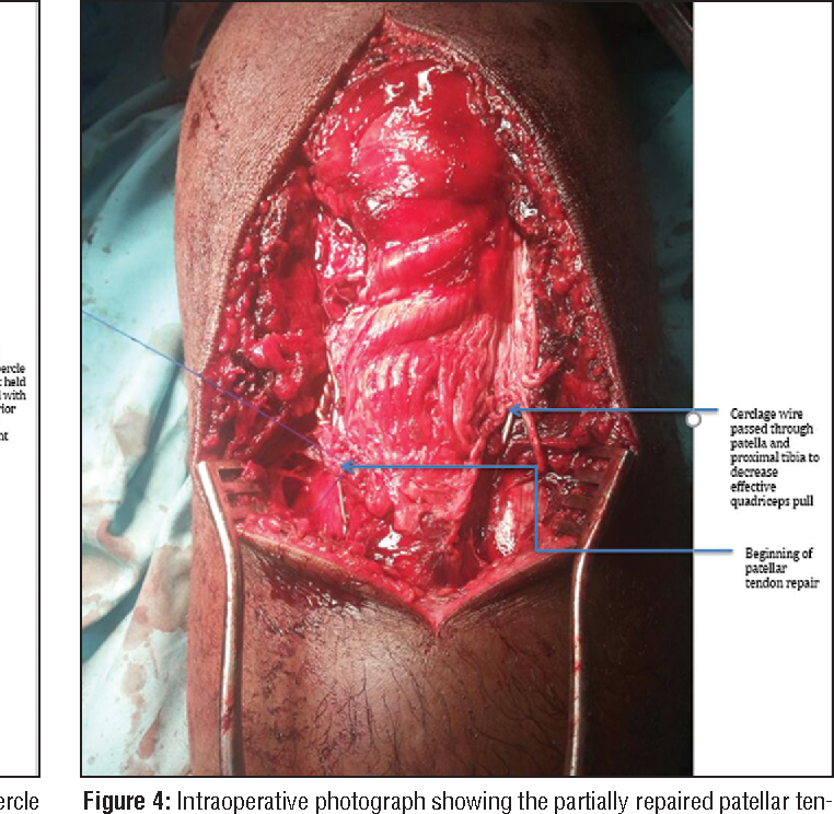 Avulsion Fracture of the Tibial Tubercle Associated With Patellar ...