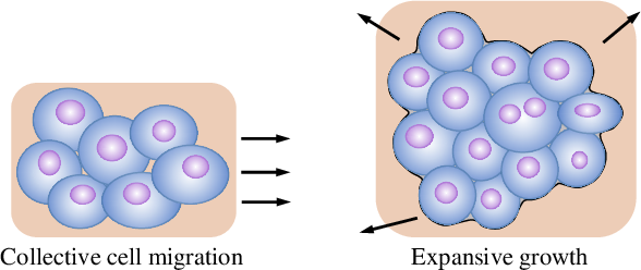 Figure 1 for Convolutional Invasion and Expansion Networks for Tumor Growth Prediction