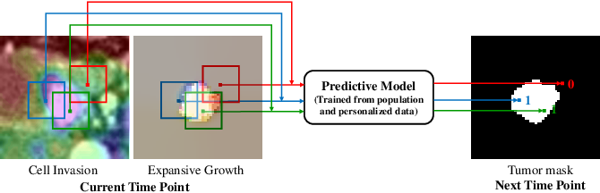 Figure 2 for Convolutional Invasion and Expansion Networks for Tumor Growth Prediction