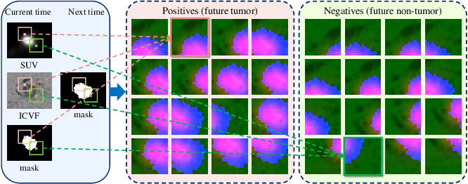 Figure 4 for Convolutional Invasion and Expansion Networks for Tumor Growth Prediction