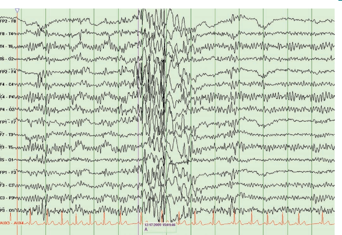 Figure 1 from When the first antiepileptic drug fails in a patient