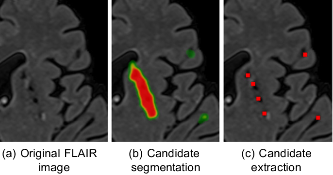 Figure 3 for Deep Multi-scale Location-aware 3D Convolutional Neural Networks for Automated Detection of Lacunes of Presumed Vascular Origin
