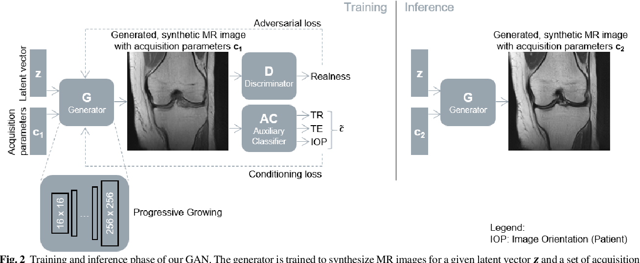 Figure 3 for Enhanced Magnetic Resonance Image Synthesis with Contrast-Aware Generative Adversarial Networks